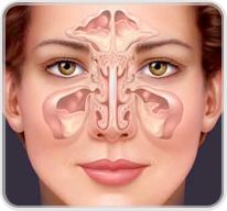 Sinus_Surgery_advice
