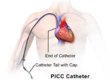 220px-Blausen_0193_Catheter_PICC